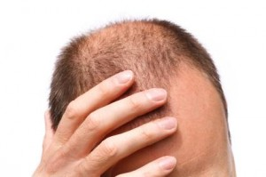 balding, receding hairline