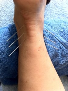 acupuncture-1211182_960_720